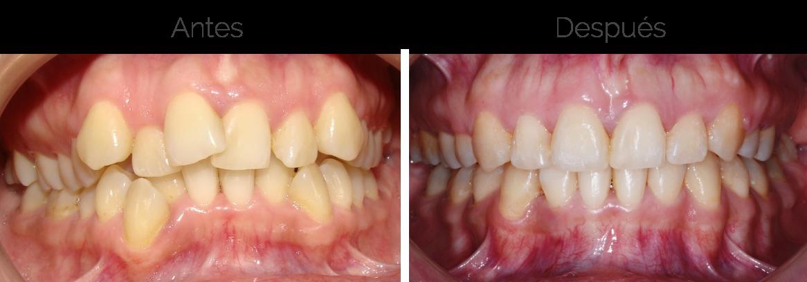 Multodent-ortodoncia-caso-1