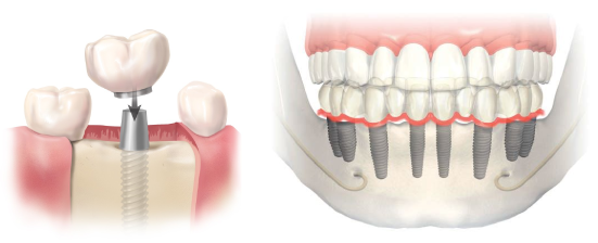 multident-tratamiento-implantes-dentales-5